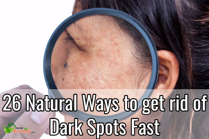 dark spots on face