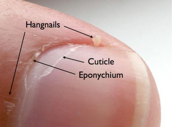 hangnail-explanation