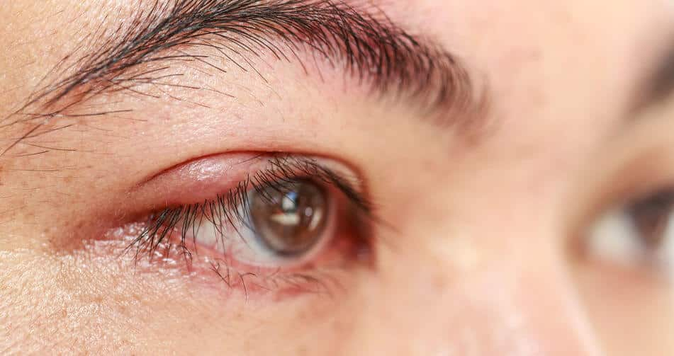 Swollen Upper Eyelid Natural Treatment