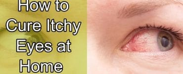 how to cure itchy eyes at home