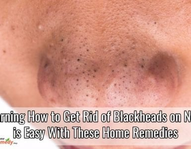 Learning How to Get Rid of Blackheads on Nose Is Easy with