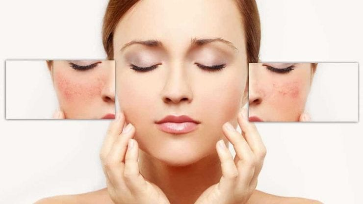 Redness in face can be caused by rosacea