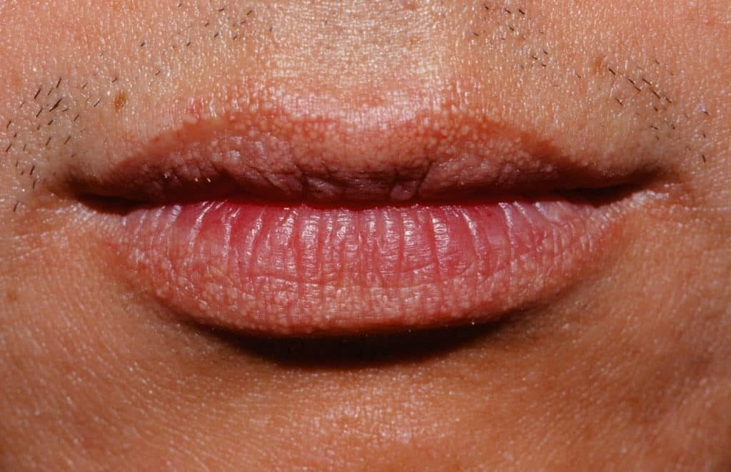 how-to-get-rid-of-fordyce-spots-on-lips