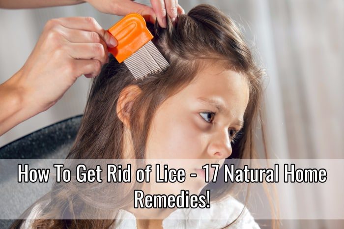 how to get rid of lice