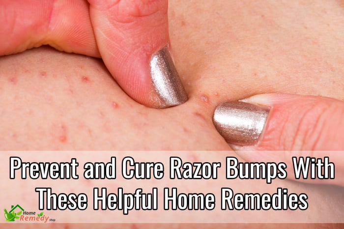 How to get rid of razor bumps on stomach