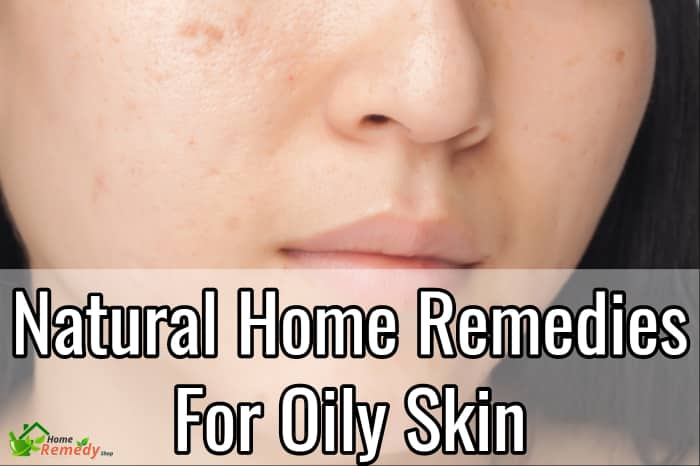 how to get rid of oily skin home remedies