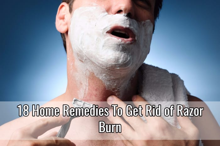 18 Home Remedies To Get Rid Of Razor Burn Home Remedies