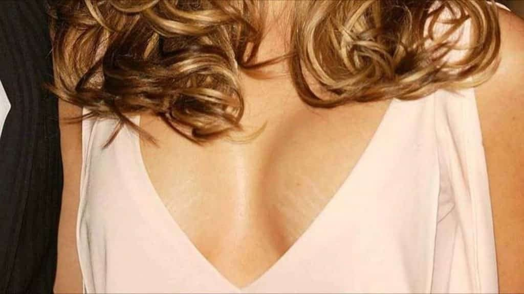 stretch-marks-on-breasts