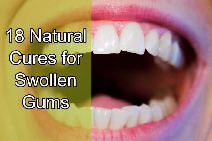 18 Natural Cures For Swollen Gums Home Remedies