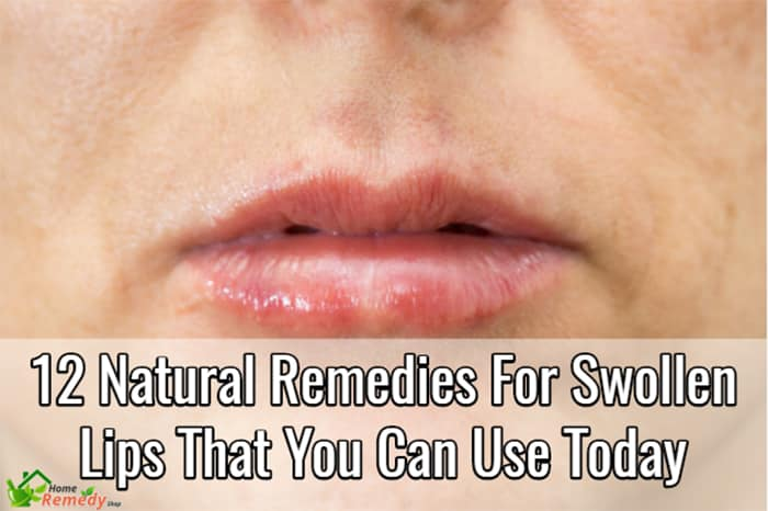 Natural Remedies For Cuts On Face
